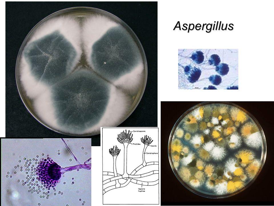 Diferenciación de especies La diferenciación de especies de este género es complicada debido que se utilizan los tres sistemas diferentes mencionados a continuación: 1.Propiedades serológicas: Grupos de Lancefield.