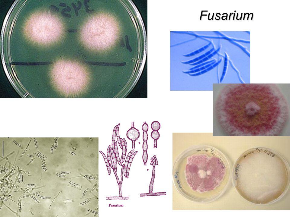 Streptococcus de importancia Médica