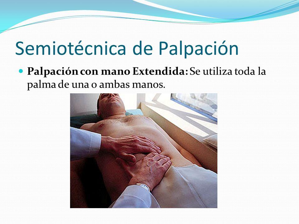 Semiotécnica de Palpación Palpación con mano Extendida: Se utiliza toda la palma de una o ambas manos.