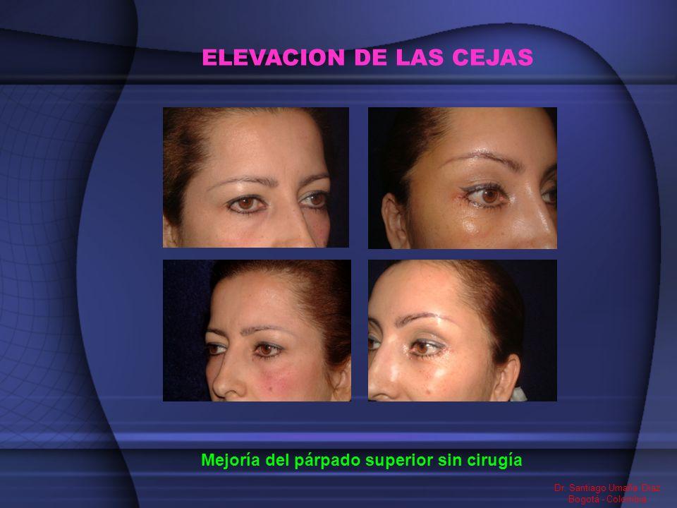 ELEVACION DE LAS CEJAS Mejoría del párpado superior sin cirugía Dr. Santiago Umaña Diaz Bogotá - Colombia