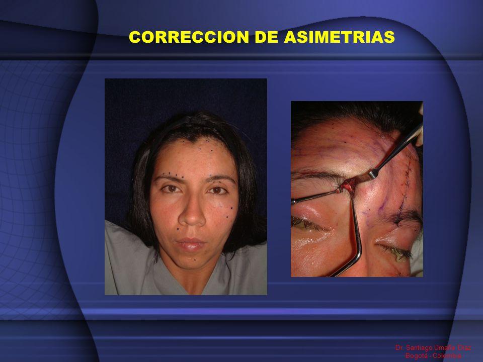 CORRECCION DE ASIMETRIAS Dr. Santiago Umaña Diaz Bogotá - Colombia