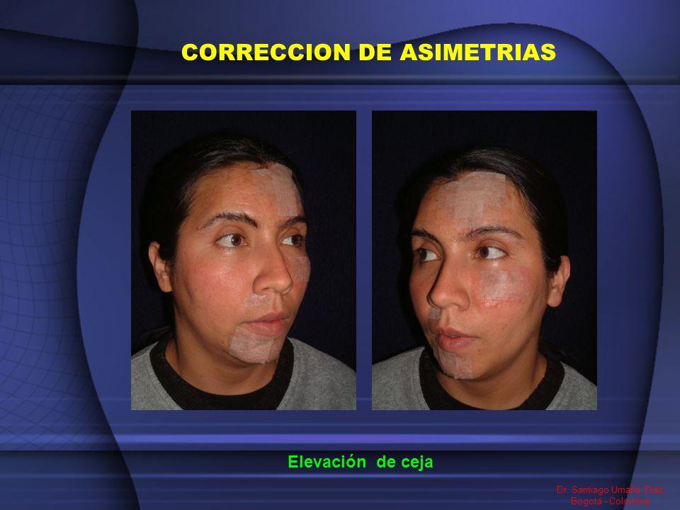 Dr. Santiago Umaña Diaz Bogotá - Colombia Elevación de ceja CORRECCION DE ASIMETRIAS