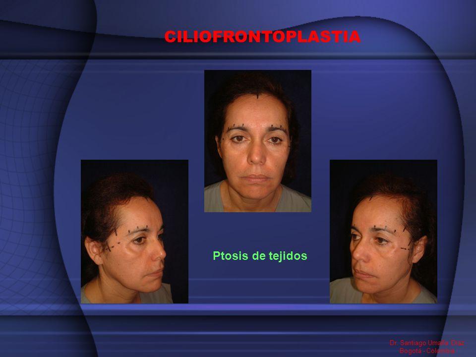 CILIOFRONTOPLASTIA Ptosis de tejidos Dr. Santiago Umaña Diaz Bogotá - Colombia