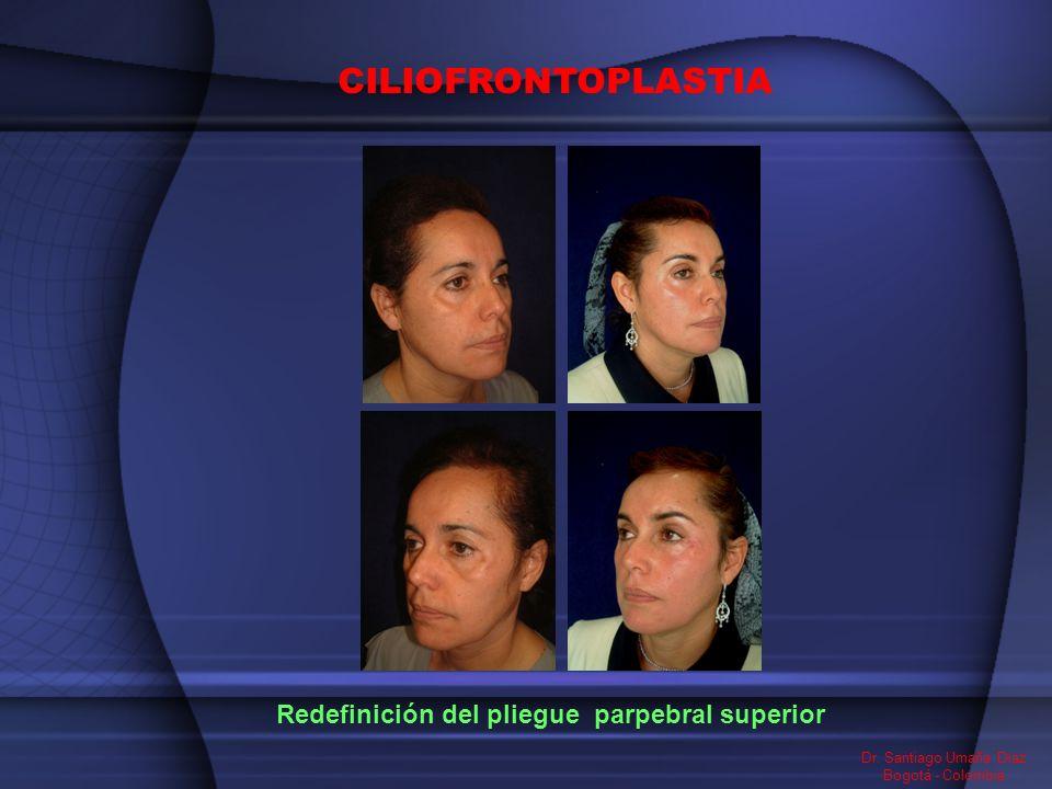 Dr. Santiago Umaña Diaz Bogotá - Colombia Redefinición del pliegue parpebral superior