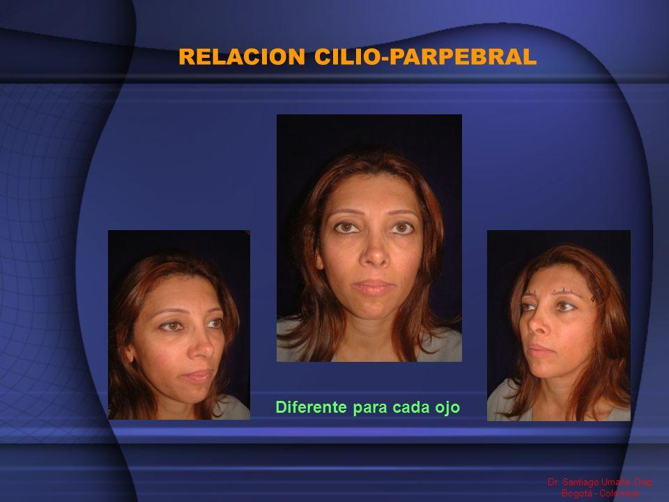 RELACION CILIO-PARPEBRAL Dr. Santiago Umaña Diaz Bogotá - Colombia Diferente para cada ojo