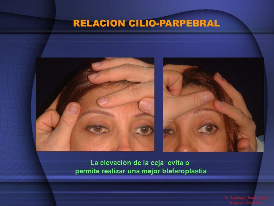 RELACION CILIO-PARPEBRAL Dr. Santiago Umaña Diaz Bogotá - Colombia La elevación de la ceja evita o permite realizar una mejor blefaroplastia