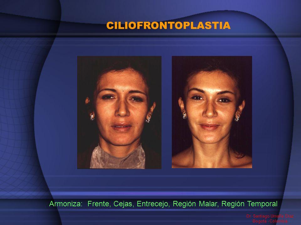 CILIOFRONTOPLASTIA Frente, Cejas, Entrecejo, Región Malar, Región Temporal Dr. Santiago Umaña Diaz Bogotá - Colombia Armoniza:
