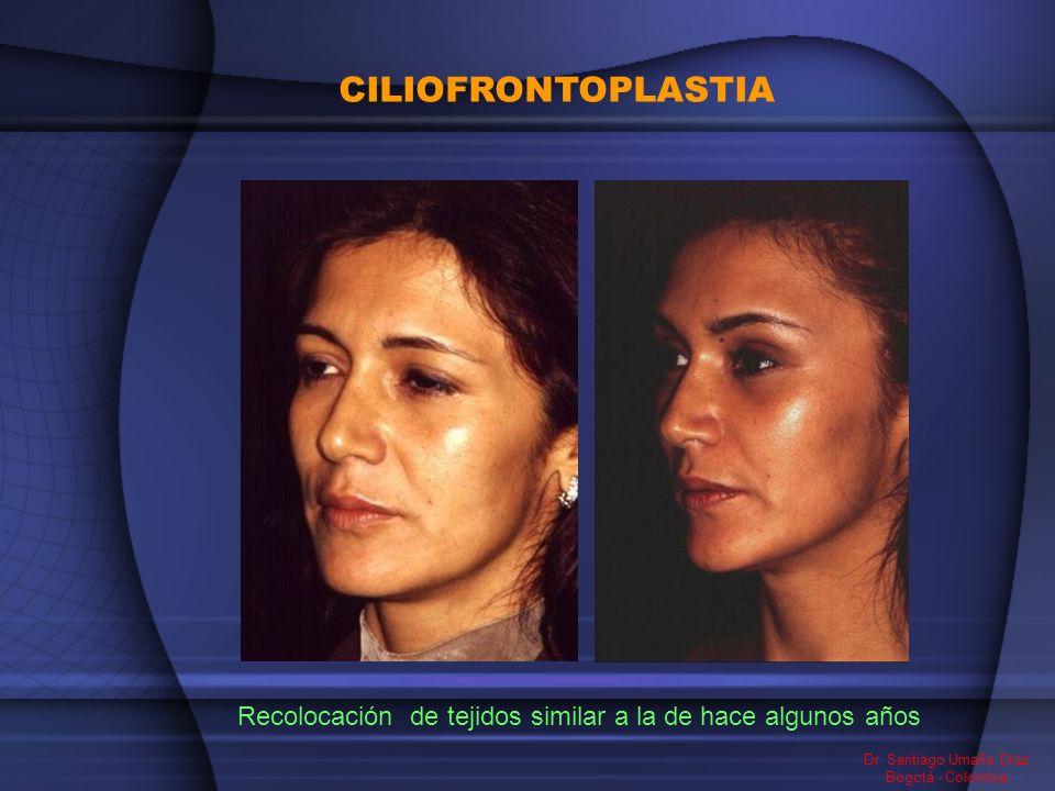 CILIOFRONTOPLASTIA Recolocación de tejidos similar a la de hace algunos años Dr. Santiago Umaña Diaz Bogotá - Colombia