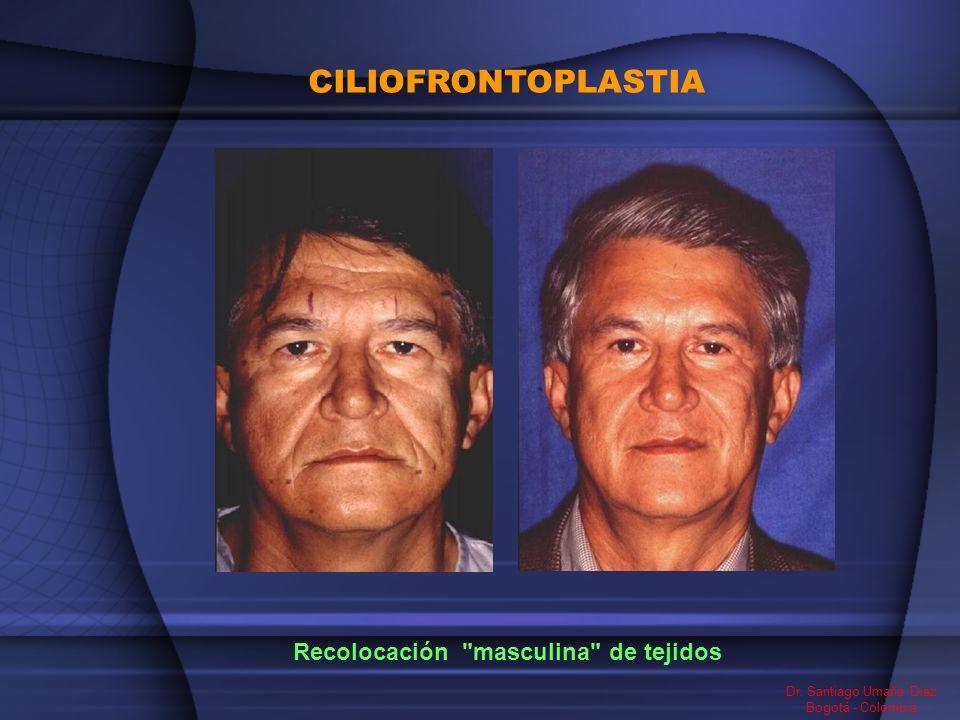 CILIOFRONTOPLASTIA Dr. Santiago Umaña Diaz Bogotá - Colombia Recolocación