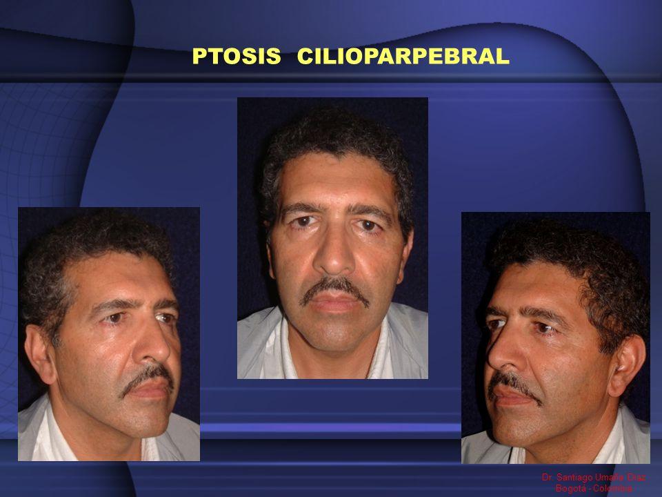 PTOSIS CILIOPARPEBRAL Dr. Santiago Umaña Diaz Bogotá - Colombia