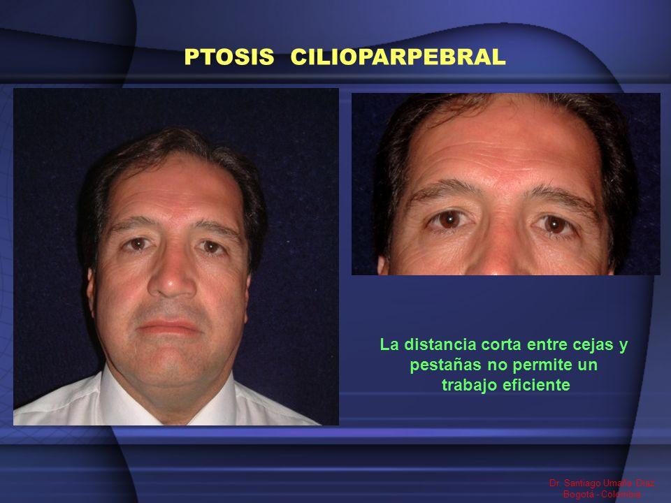 Dr. Santiago Umaña Diaz Bogotá - Colombia PTOSIS CILIOPARPEBRAL La distancia corta entre cejas y pestañas no permite un trabajo eficiente