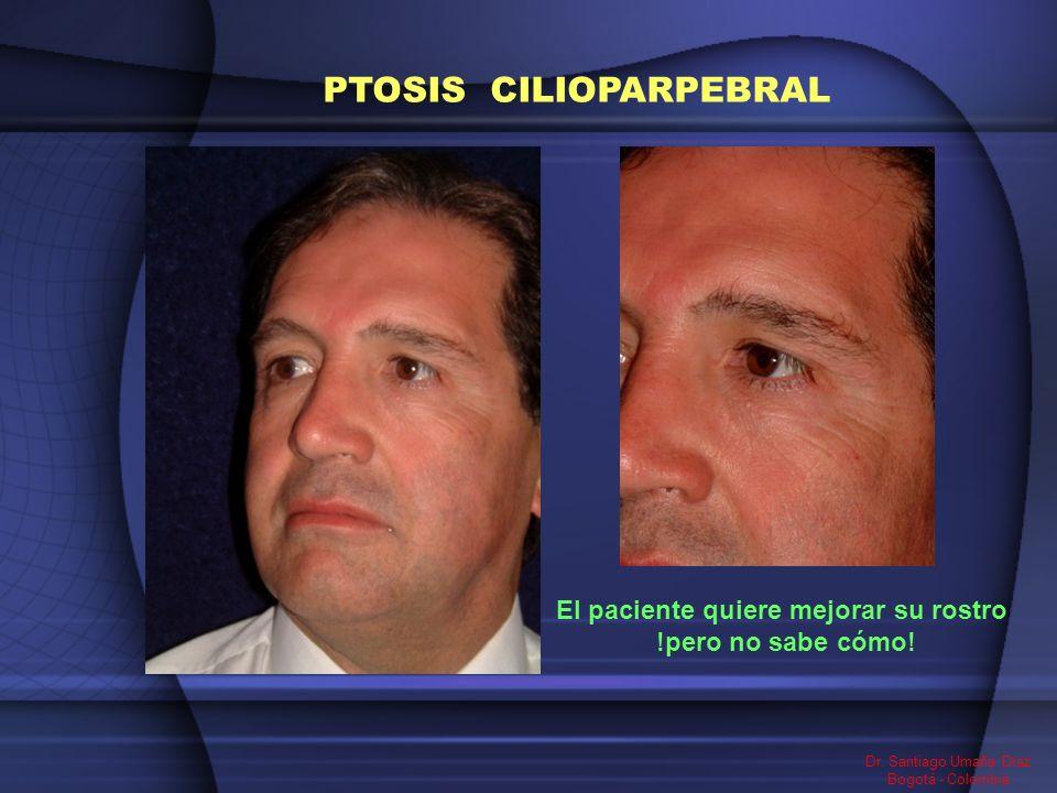 El paciente quiere mejorar su rostro !pero no sabe cómo! Dr. Santiago Umaña Diaz Bogotá - Colombia PTOSIS CILIOPARPEBRAL