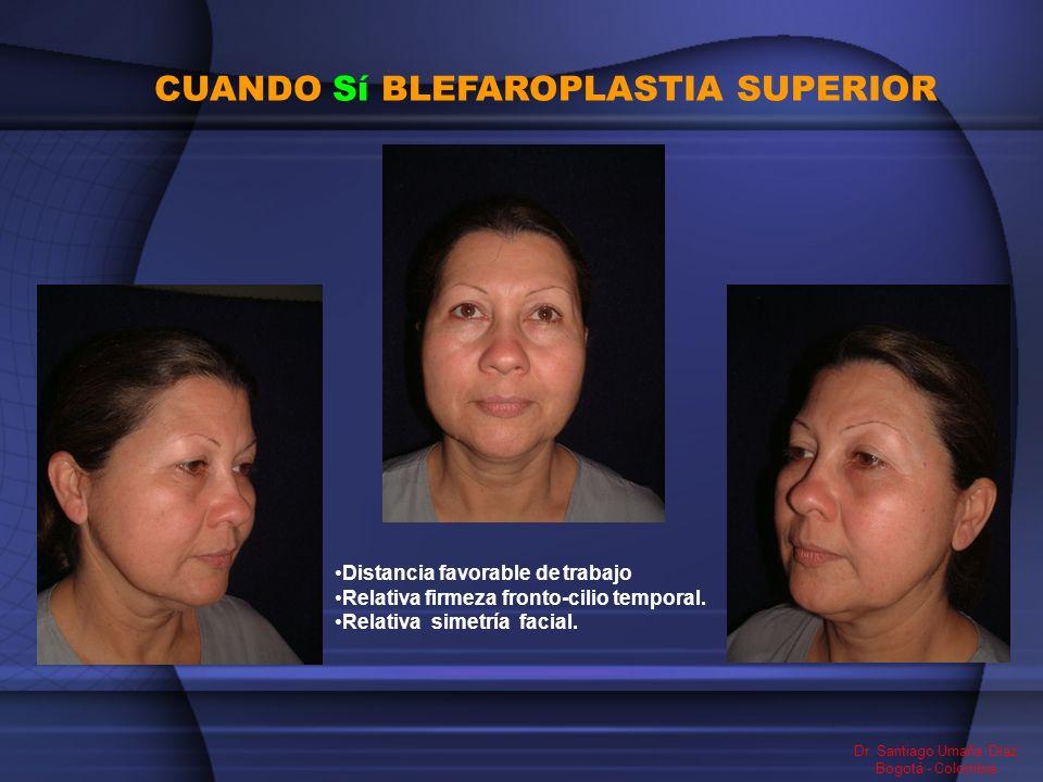 CUANDO Sí BLEFAROPLASTIA SUPERIOR Dr. Santiago Umaña Diaz Bogotá - Colombia Distancia favorable de trabajo Relativa firmeza fronto-cilio temporal. Rel