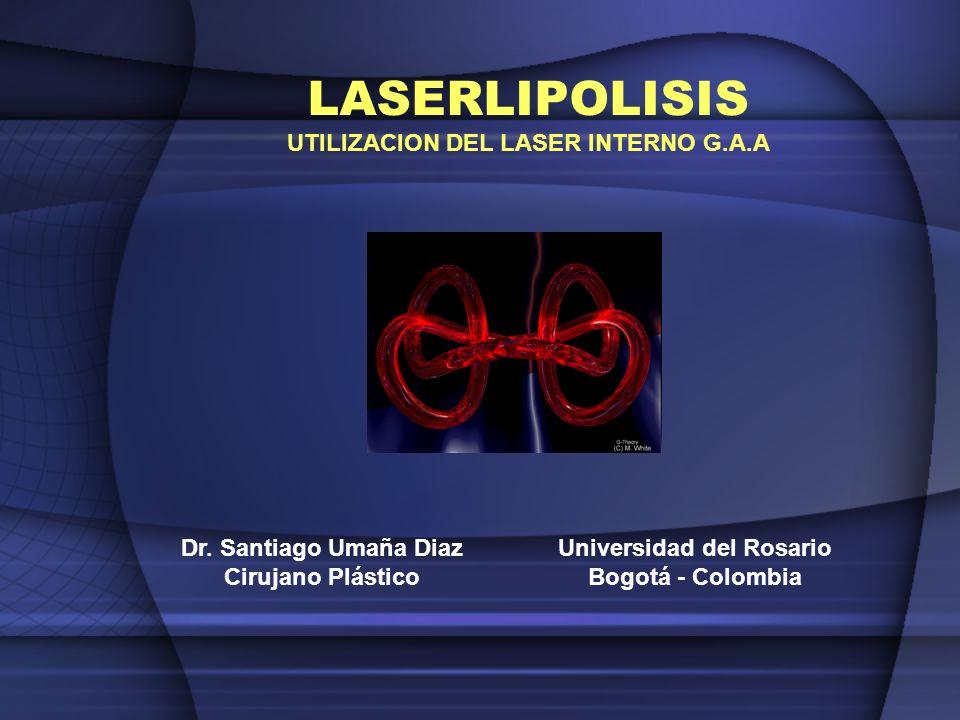 LASERLIPOLISIS UTILIZACION DEL LASER INTERNO G.A.A Dr. Santiago Umaña Diaz Cirujano Plástico Universidad del Rosario Bogotá - Colombia