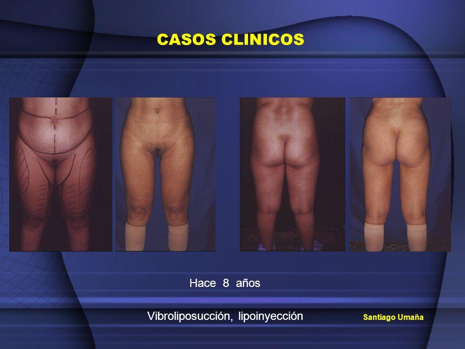 Santiago Umaña CASOS CLINICOS Hace 8 años Vibroliposucción, lipoinyección