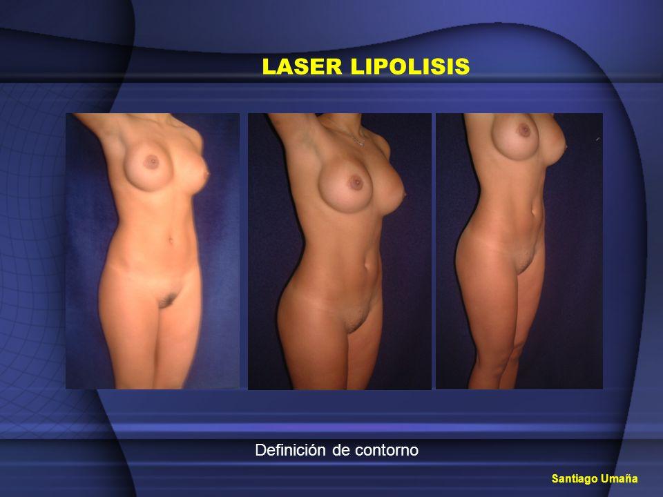 Santiago Umaña LASER LIPOLISIS Definición de contorno