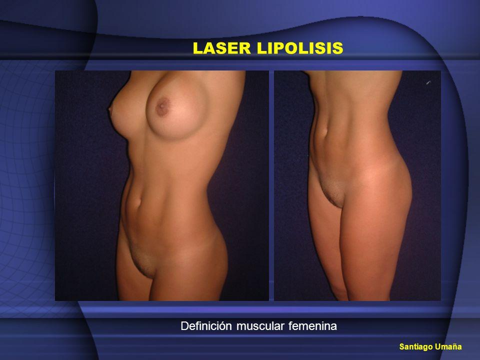 Santiago Umaña LASER LIPOLISIS Definición muscular femenina
