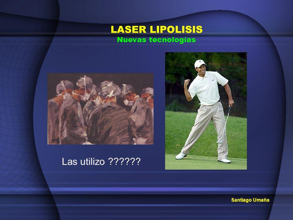 Santiago Umaña LASER LIPOLISIS Nuevas tecnologías Las utilizo ??????