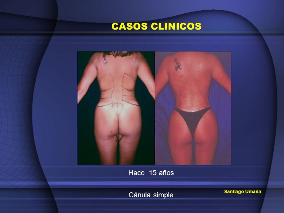CASOS CLINICOS Santiago Umaña Hace 15 años Cánula simple