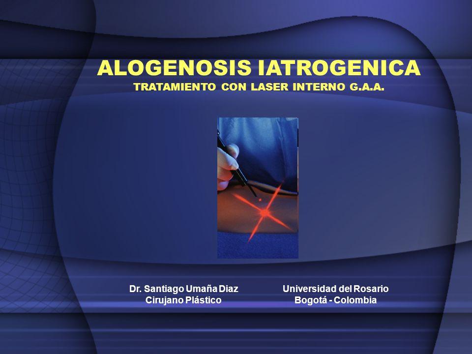 El término de Alogenosis Iatrogénica se refiere al daño que se produce en los tejidos luego de la aplicación de alguna sustancia exógena, sintética o biológica, por personal con o sin entrenamiento.