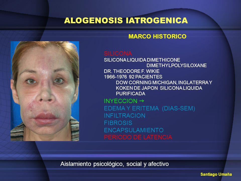 Aislamiento psicológico, social y afectivo ALOGENOSIS IATROGENICA SILICONA SILICONA LIQUIDA DIMETHICONE DIMETHYLPOLYSILOXANE DR. THEODORE F. WIKIE 196