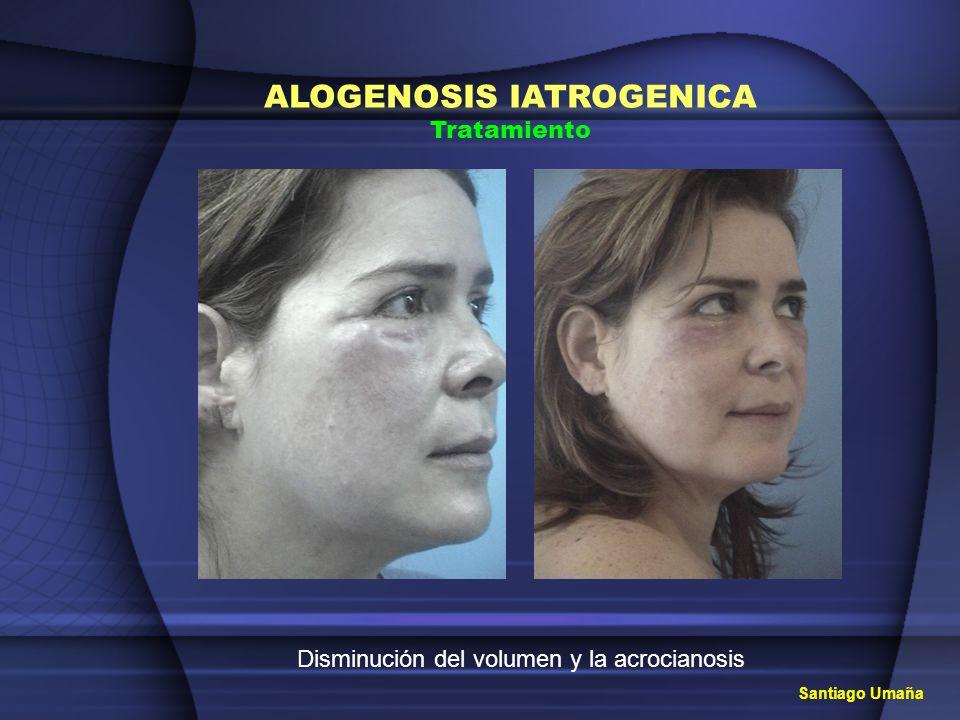 ALOGENOSIS IATROGENICA Tratamiento Disminución del volumen y la acrocianosis Santiago Umaña
