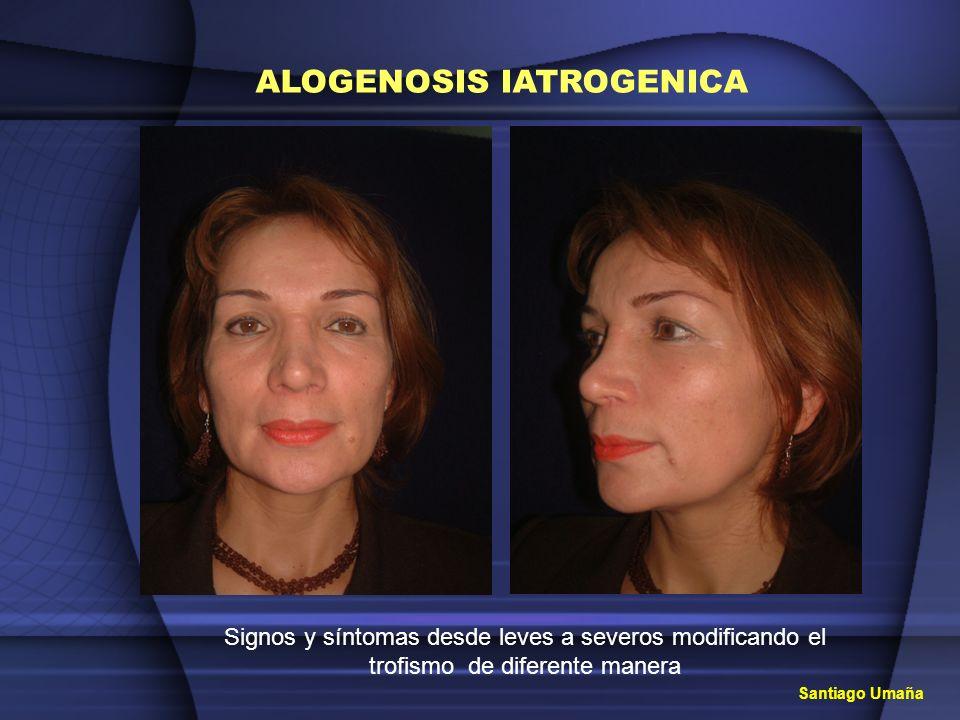 ALOGENOSIS IATROGENICA Signos y síntomas desde leves a severos modificando el trofismo de diferente manera