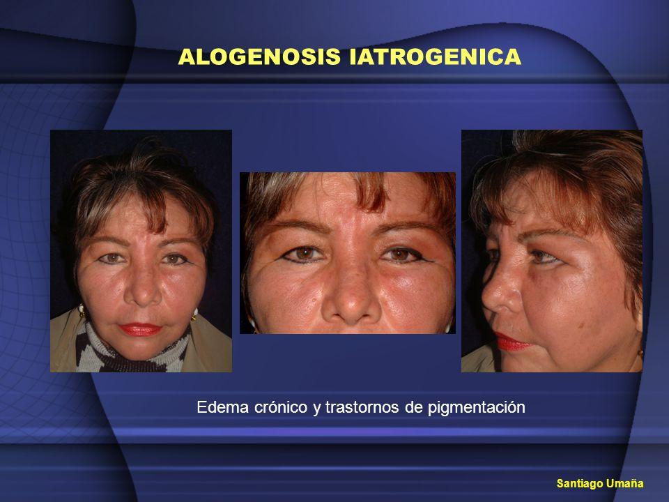 Aislamiento psicológico, social y afectivo ALOGENOSIS IATROGENICA SILICONA SILICONA LIQUIDA DIMETHICONE DIMETHYLPOLYSILOXANE DR.