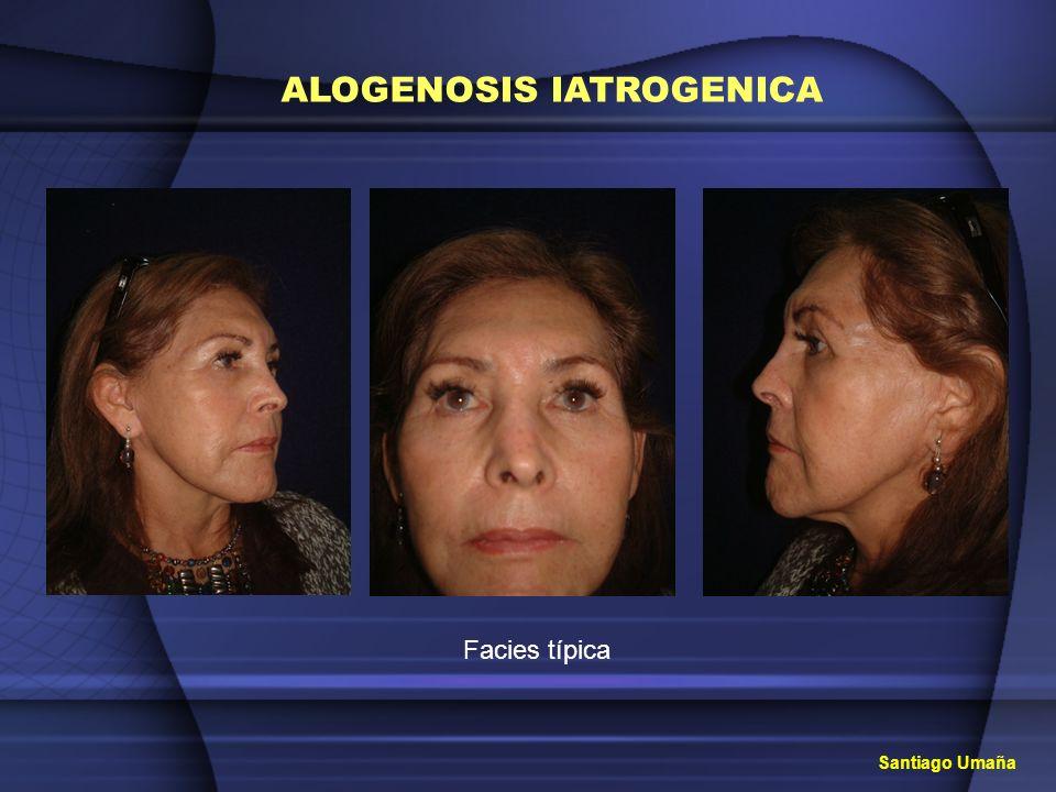 ALOGENOSIS IATROGENICA PERIODO DE LATENCIA INFLAMACION EN ZONA INYECTADA R.