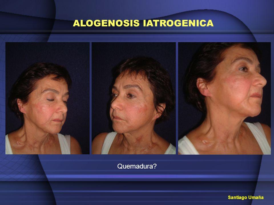 ALOGENOSIS IATROGENICA Tratamiento con laser interno G.A.A.