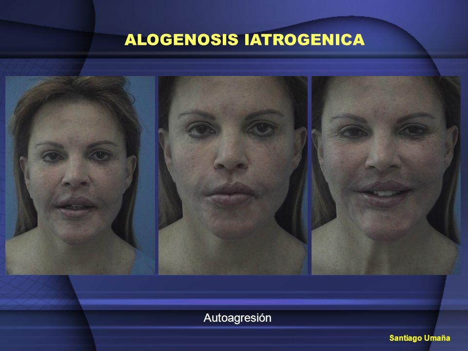 ALOGENOSIS IATROGENICA Tratamiento Múltiple infiltración de solución de klein, aplicaciones repetitivas del láser y extracciones