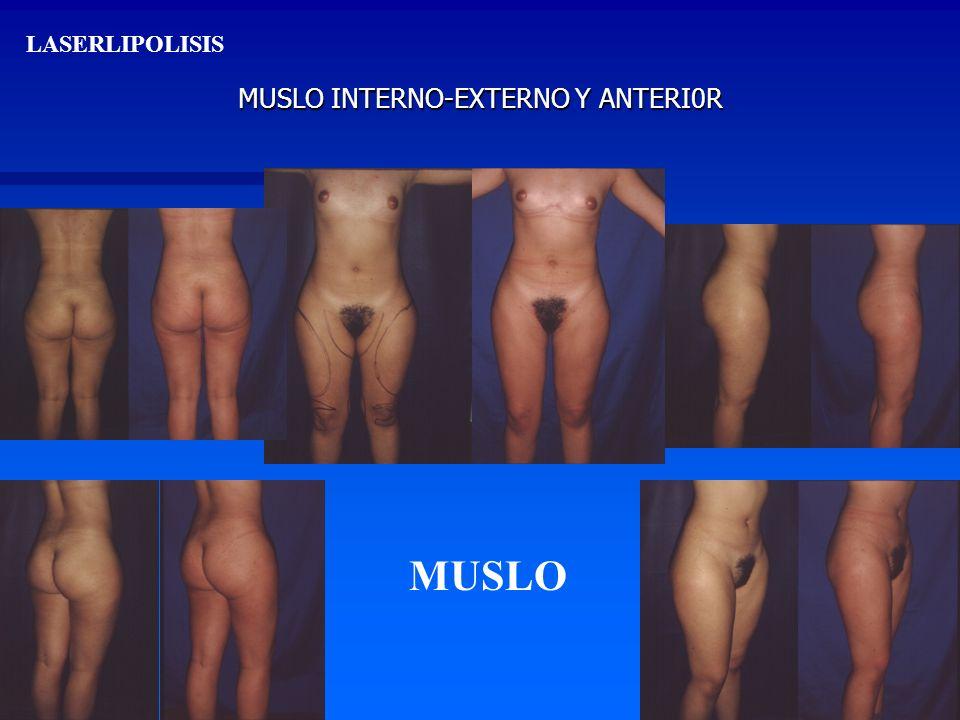 MUSLO INTERNO-EXTERNO Y ANTERI0R LASERLIPOLISIS MUSLO