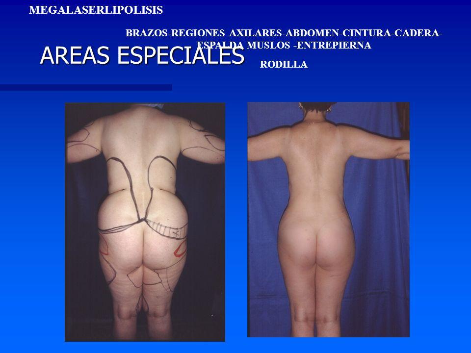 AREAS ESPECIALES MEGALASERLIPOLISIS BRAZOS-REGIONES AXILARES-ABDOMEN-CINTURA-CADERA- ESPALDA MUSLOS -ENTREPIERNA RODILLA