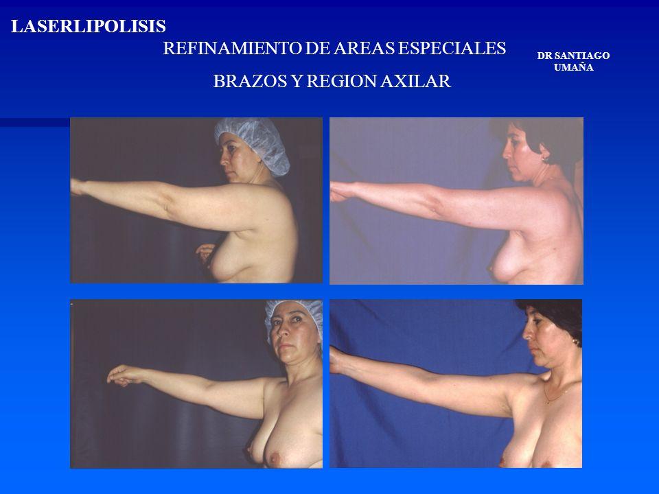 REFINAMIENTO DE AREAS ESPECIALES BRAZOS Y REGION AXILAR DR SANTIAGO UMAÑA LASERLIPOLISIS