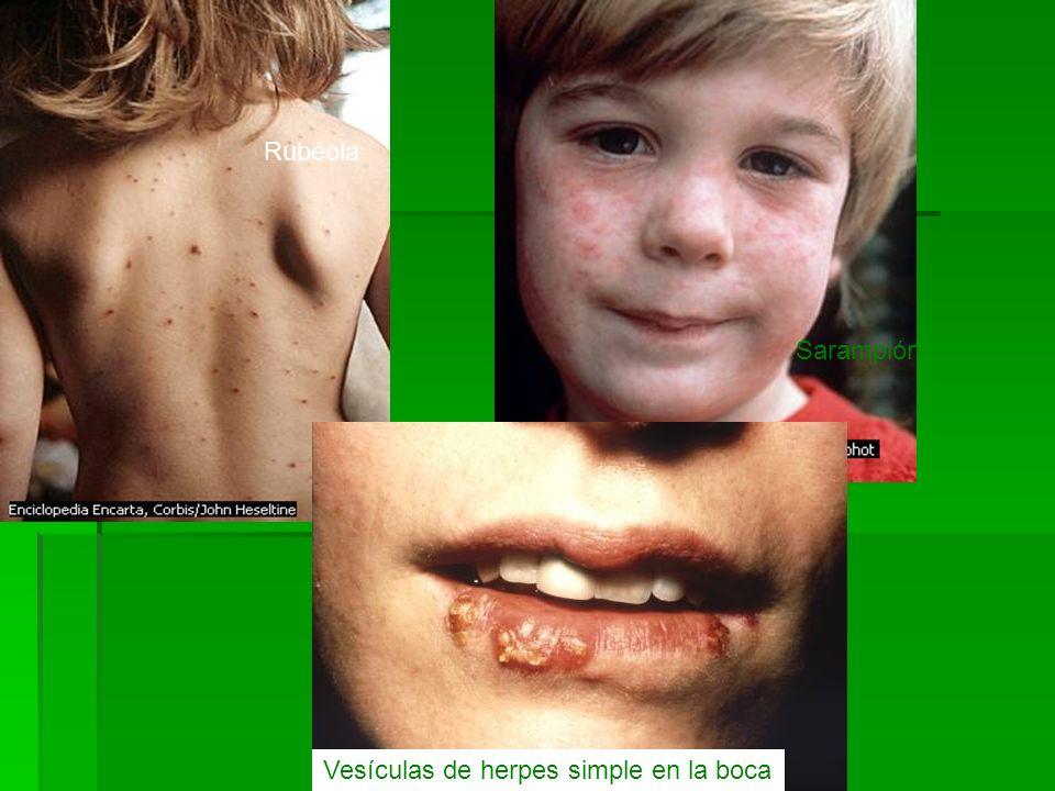 Rubéola Sarampión Vesículas de herpes simple en la boca