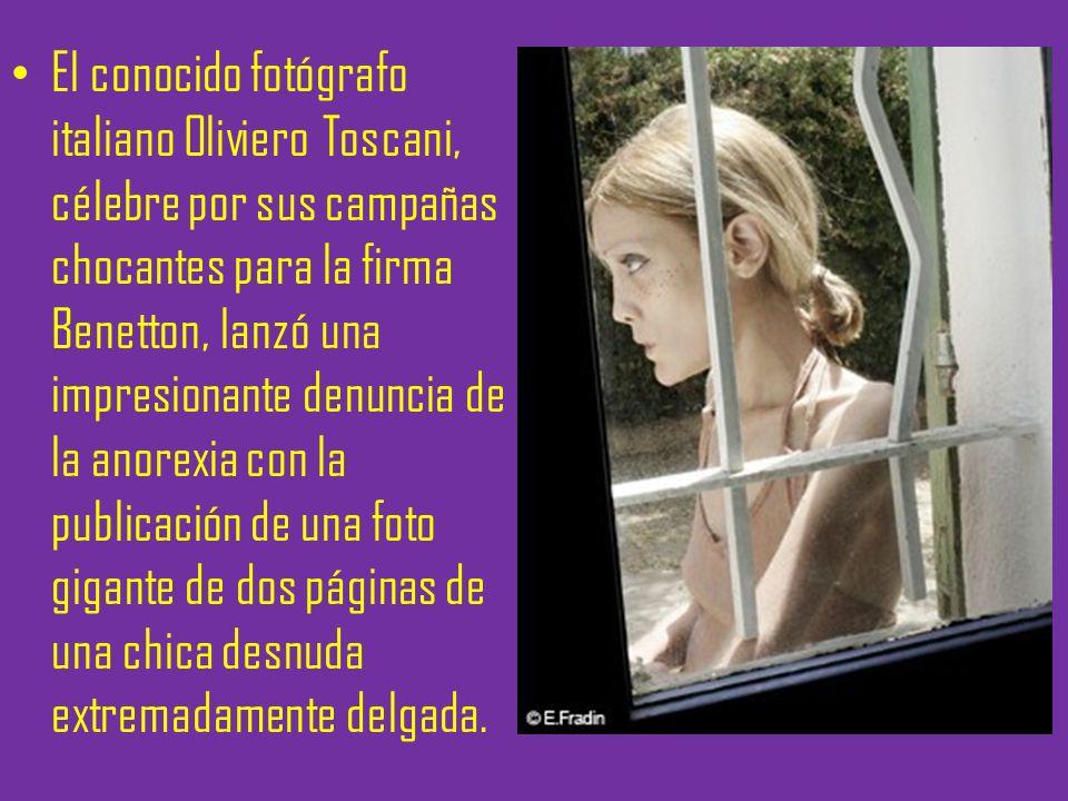 El conocido fotógrafo italiano Oliviero Toscani, célebre por sus campañas chocantes para la firma Benetton, lanzó una impresionante denuncia de la ano