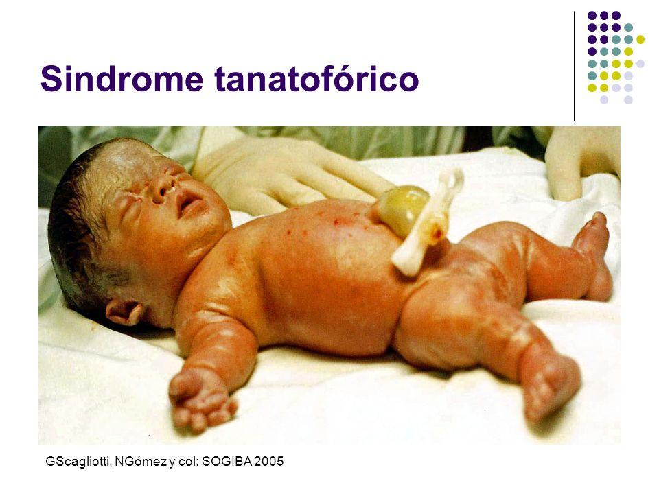Sindrome tanatofórico GScagliotti, NGómez y col: SOGIBA 2005