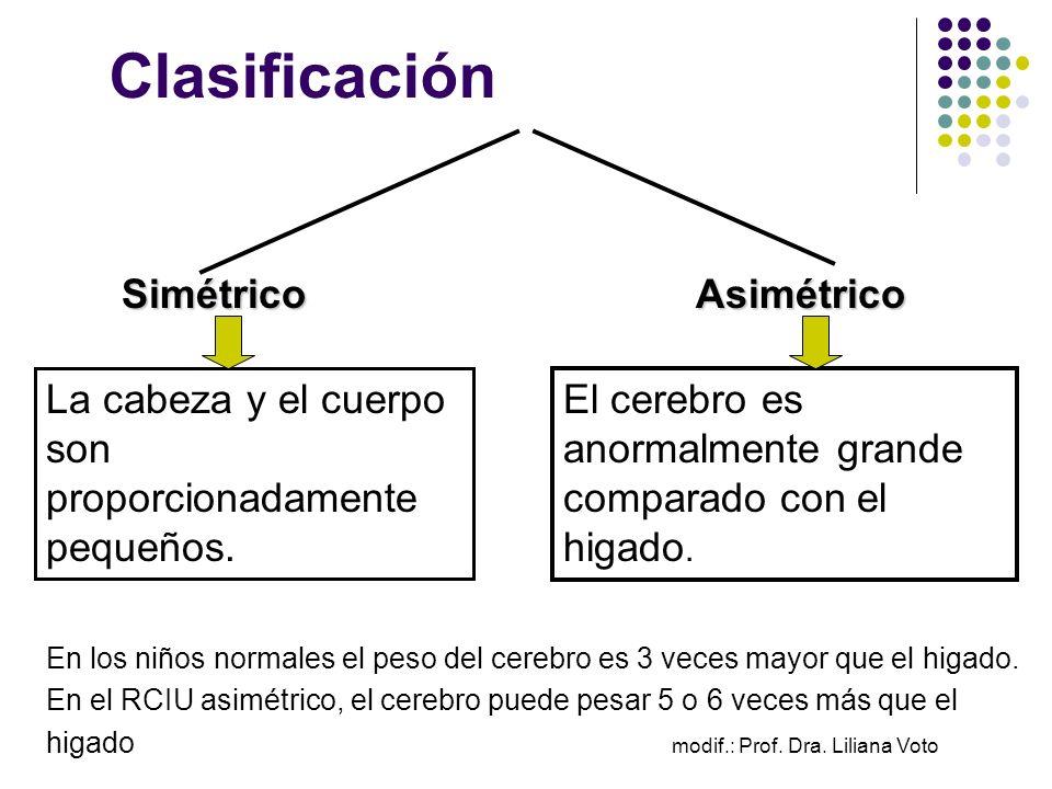 Clasificación Simétrico Simétrico Asimétrico Asimétrico El cerebro es anormalmente grande comparado con el higado. La cabeza y el cuerpo son proporcio