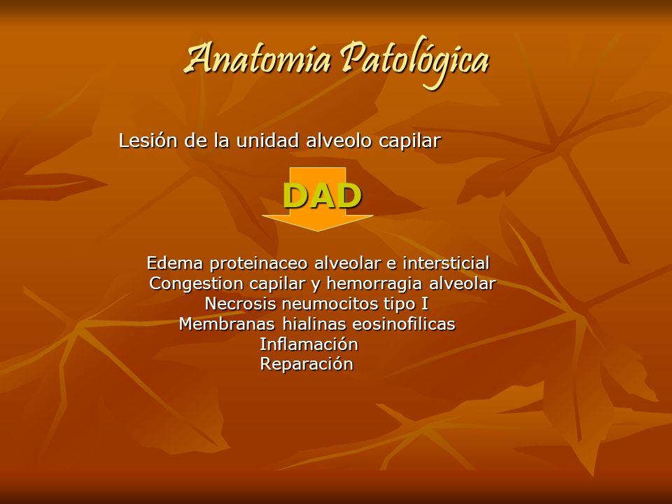 Anatomia Patológica Lesión de la unidad alveolo capilar Lesión de la unidad alveolo capilar DAD DAD Edema proteinaceo alveolar e intersticial Edema pr