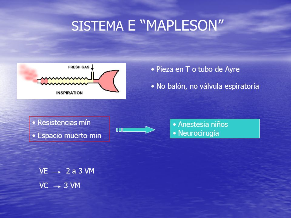 SISTEMA F MAPLESON Sistema Jackson-Rees: Variante tubo T ( con balón) Variante Mapleson D ( valv.