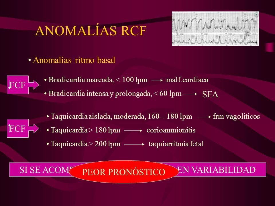Desaceleraciones regulares DIP I Desaceleraciones precoces, orígen vagal reflejo por compresión cabeza fetal.