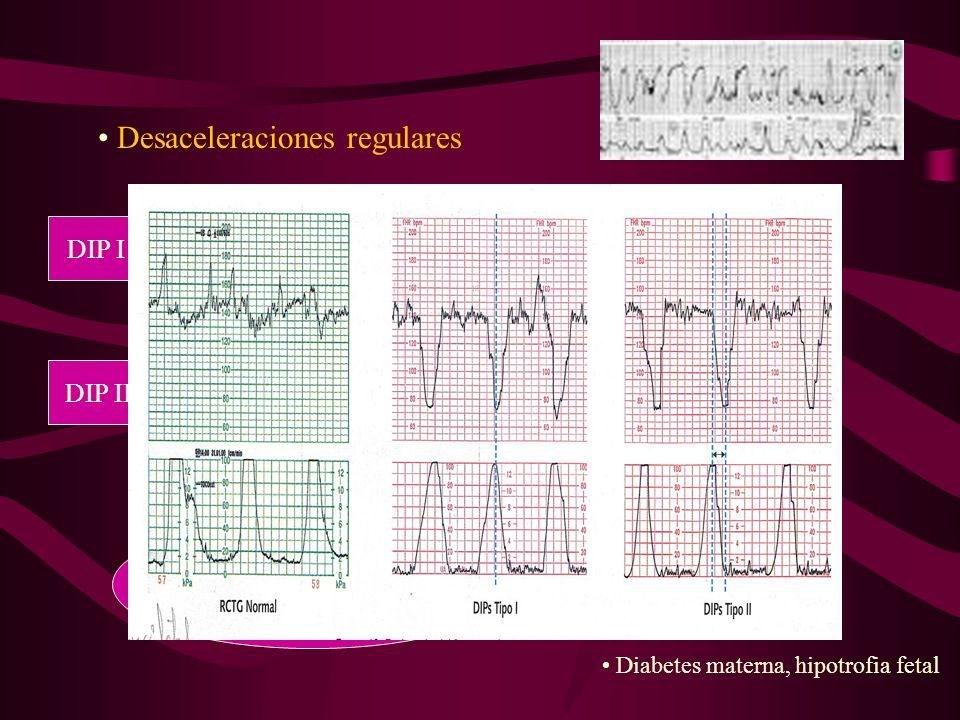 Desaceleraciones irregulares DIPS III Compresión del cordón umbilical.