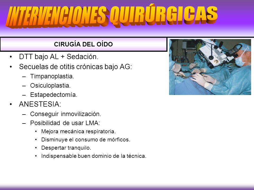 DTT bajo AL + Sedación. Secuelas de otitis crónicas bajo AG: –Timpanoplastia. –Osiculoplastia. –Estapedectomía. ANESTESIA: –Conseguir inmovilización.