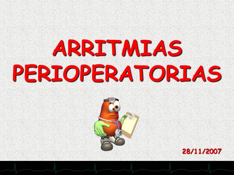 28/11/2007 ARRITMIAS PERIOPERATORIAS 28/11/2007