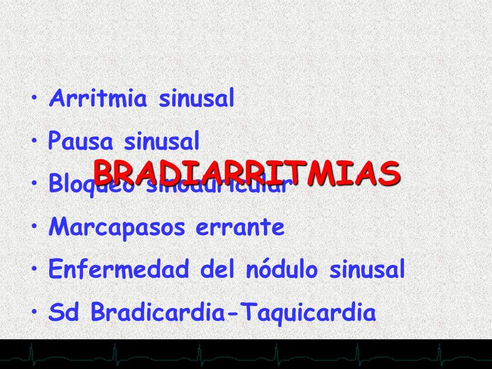 28/11/2007 Arritmia sinusal Pausa sinusal Bloqueo sinoauricular Marcapasos errante Enfermedad del nódulo sinusal Sd Bradicardia-Taquicardia BRADIARRIT