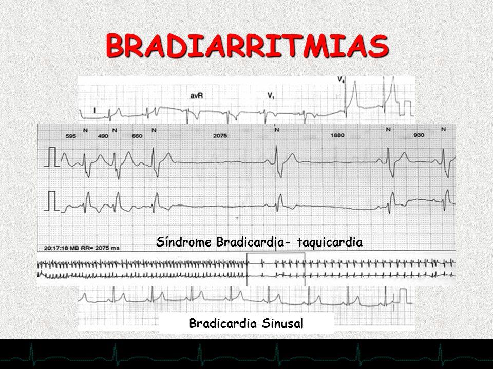 28/11/2007 Bradicardia Sinusal Síndrome Bradicardia- taquicardia BRADIARRITMIAS