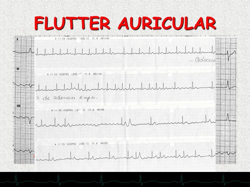 28/11/2007 FLUTTER AURICULAR