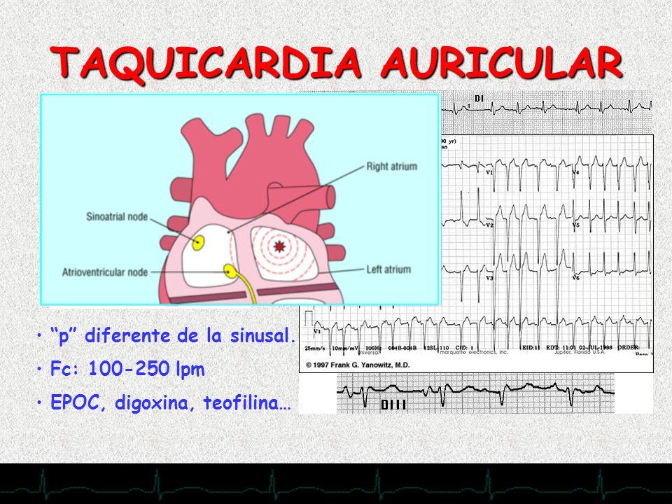 28/11/2007 TAQUICARDIA AURICULAR p diferente de la sinusal. Fc: 100-250 lpm EPOC, digoxina, teofilina…
