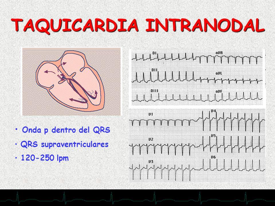 28/11/2007 TAQUICARDIA INTRANODAL Onda p dentro del QRS QRS supraventriculares 120-250 lpm