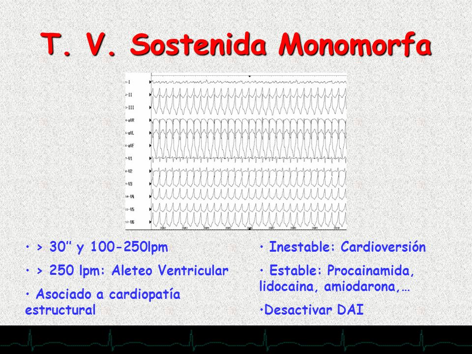 28/11/2007 T. V. Sostenida Monomorfa > 30 y 100-250lpm > 250 lpm: Aleteo Ventricular Asociado a cardiopatía estructural Inestable: Cardioversión Estab
